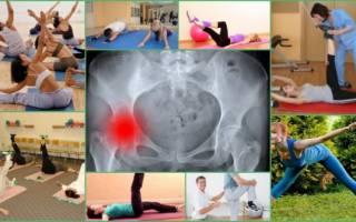 Лечебная гимнастика при тазобедренном артрозе