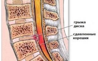 Позвонковая грыжа поясничного отдела лечение