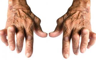 Артрит кистей рук симптомы фото