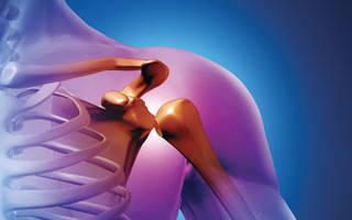 Хронические ревматоидные и реактивные артриты