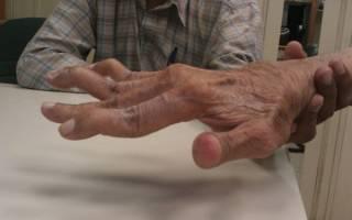 Ревматоидный серонегативный артрит лечение симптомы