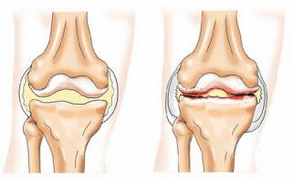 Код по мкб деформирующий остеоартроз
