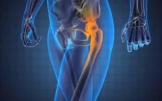 Боль в бедренном суставе при ходьбе лечение