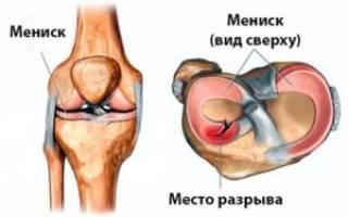 Разрыв мениска коленного сустава лечение без операции в домашних условиях