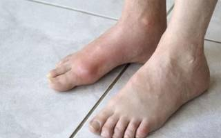 Чем лечить артрит голеностопного сустава