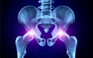 Как укрепить тазобедренные суставы упражнения