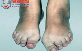 Лечение остеоартроза стопы народными средствами