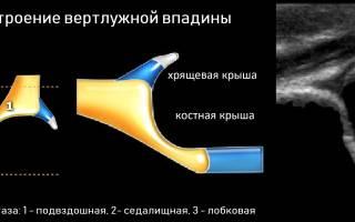 Дисплазия тазобедренных суставов у новорожденных признаки