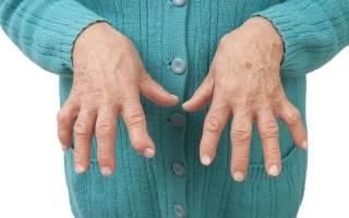 Когда начнут лечить ревматоидный артрит