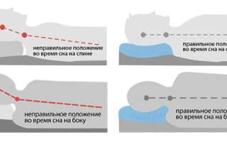 Остеохондроз шейного позвонка симптомы и лечение