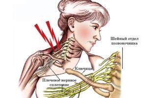 Невралгические боли в правом плече и руке