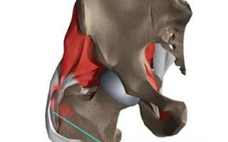 Вертельный бурсит тазобедренного сустава симптомы