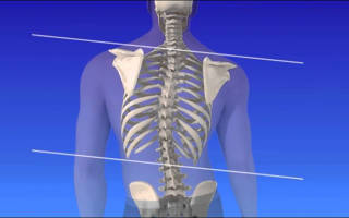 Степени сколиоза грудного отдела по рентгену
