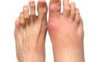 Как лечить ревматоидный артрит ступни