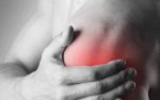 Упражнение для плечевого сустава при артрозе видео