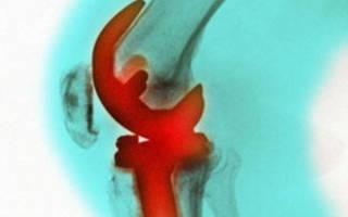 Артроз коленного сустава первой степени