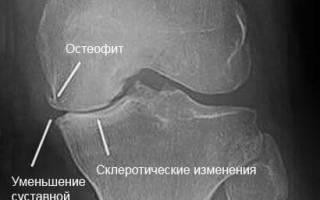 Заострение межмыщелковых возвышений коленного сустава