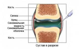 Жидкость в коленном суставе причины и лечение народными средствами