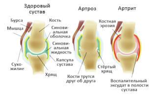 Артрит и артроз лечение гомеопатией