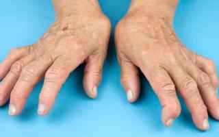 Ревматоидный артрит кисти рук лечить