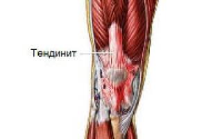 Воспаление сухожилий коленного сустава лечение