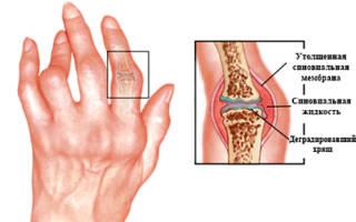 Ревматоидный артрит температура какая может держаться