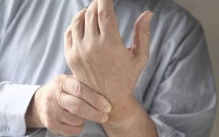 Лечение артрита рук и ног