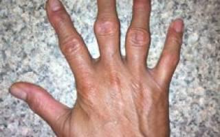 Артрит мелких суставов кистей рук