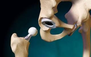 Подготовка к эндопротезированию тазобедренного сустава