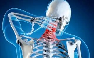 Чем и как лечить шейный остеохондроз сильные головные боли