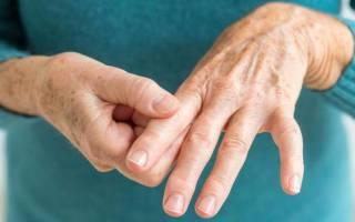 Ревматоидный артрит лечение биологическими препаратами