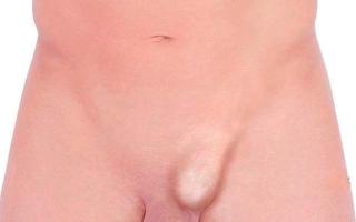 После операции на паховую грыжу