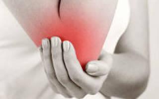 Невропатия локтевого нерва лечение препараты