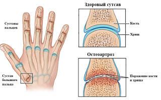 Остеоартроз рук лечение и симптомы