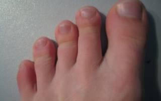 Как вылечить артрит на ноге