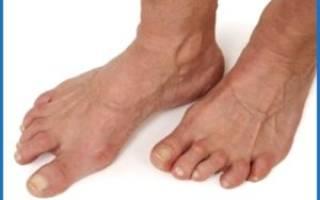 Остеоартроз ступни симптомы и лечение