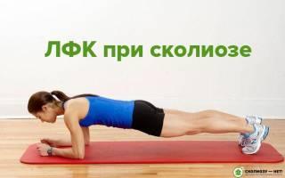 Лечебная гимнастика при сколиозе видео