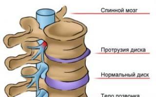 Артрит в шейном отделе позвоночника симптомы
