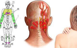 Невралгия лечение в домашних условиях