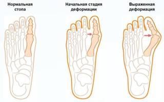 Отличие подагры от ревматоидного артрита
