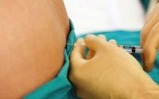 Укол в позвоночник блокада при остеохондрозе