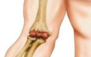 Боль в левом локтевом суставе при нагрузке