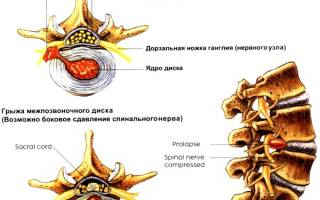 Межпозвонковая грыжа в пояснице лечение народными средствами