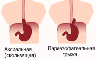 Диафрагмальная грыжа симптомы и лечение народными средствами