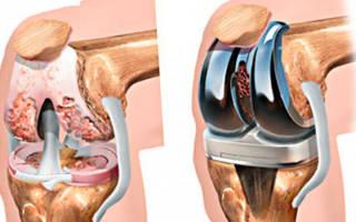 Реабилитация дома после эндопротезирования коленного сустава