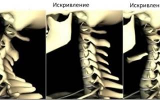 Сколиоз шейного отдела позвоночника упражнения