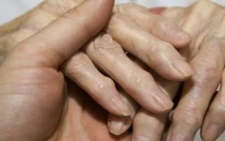 Как лечить полиартрит кистей рук