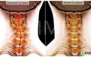 Сколиоз шейного отдела позвоночника симптомы