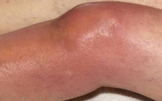 Инфекционно аллергический артрит у ребенка