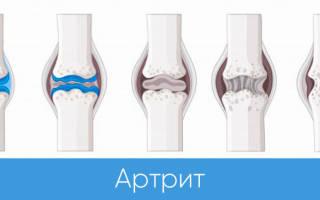 Новое в лечении артрозов артритов